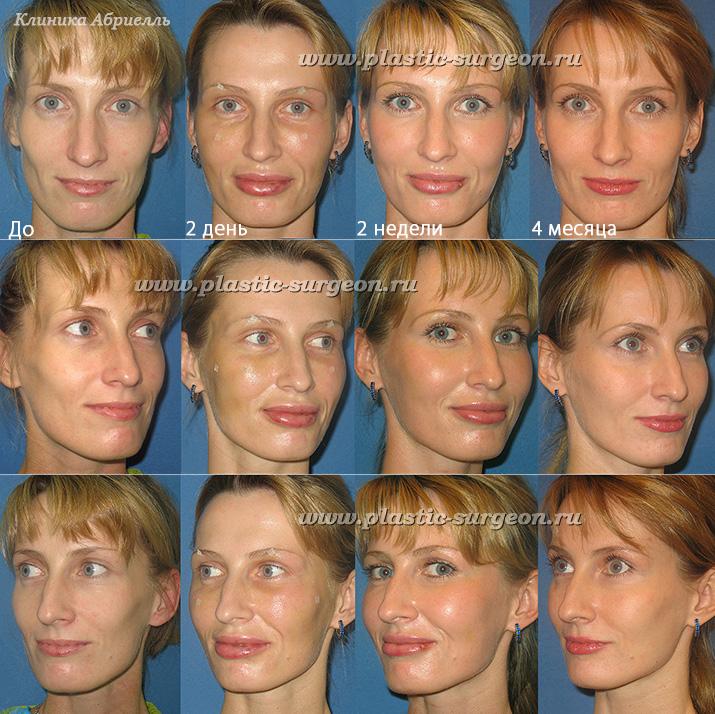 Липофилинг лица — феноменальный метод омоложения