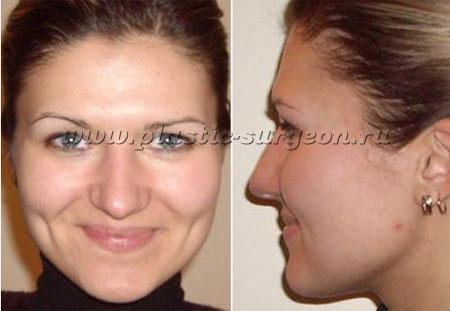 http://plastic-surgeon.ru/files/Konsalt/Skuli/mazi3.jpg