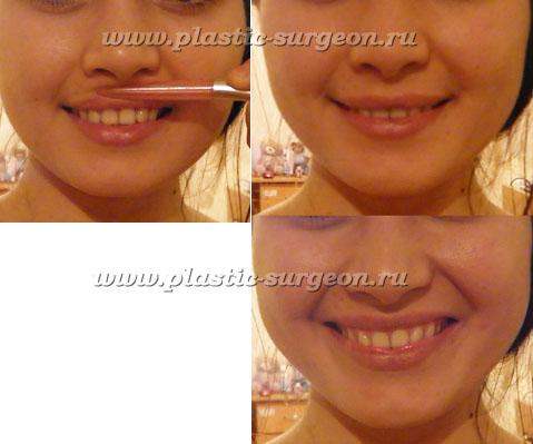 Как сделать себе более пухлее щеки