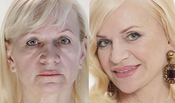Омоложение лица 40 лет в домашних условиях 511