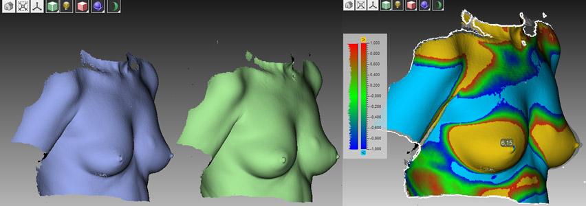 Срок реабилитации после операции на груди