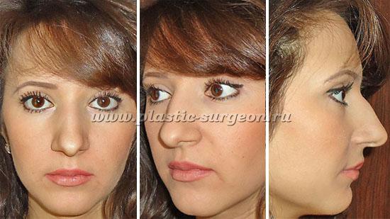 Коррекция костной части носа